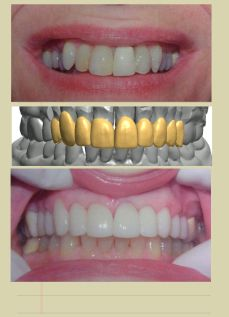 tooth smile design
